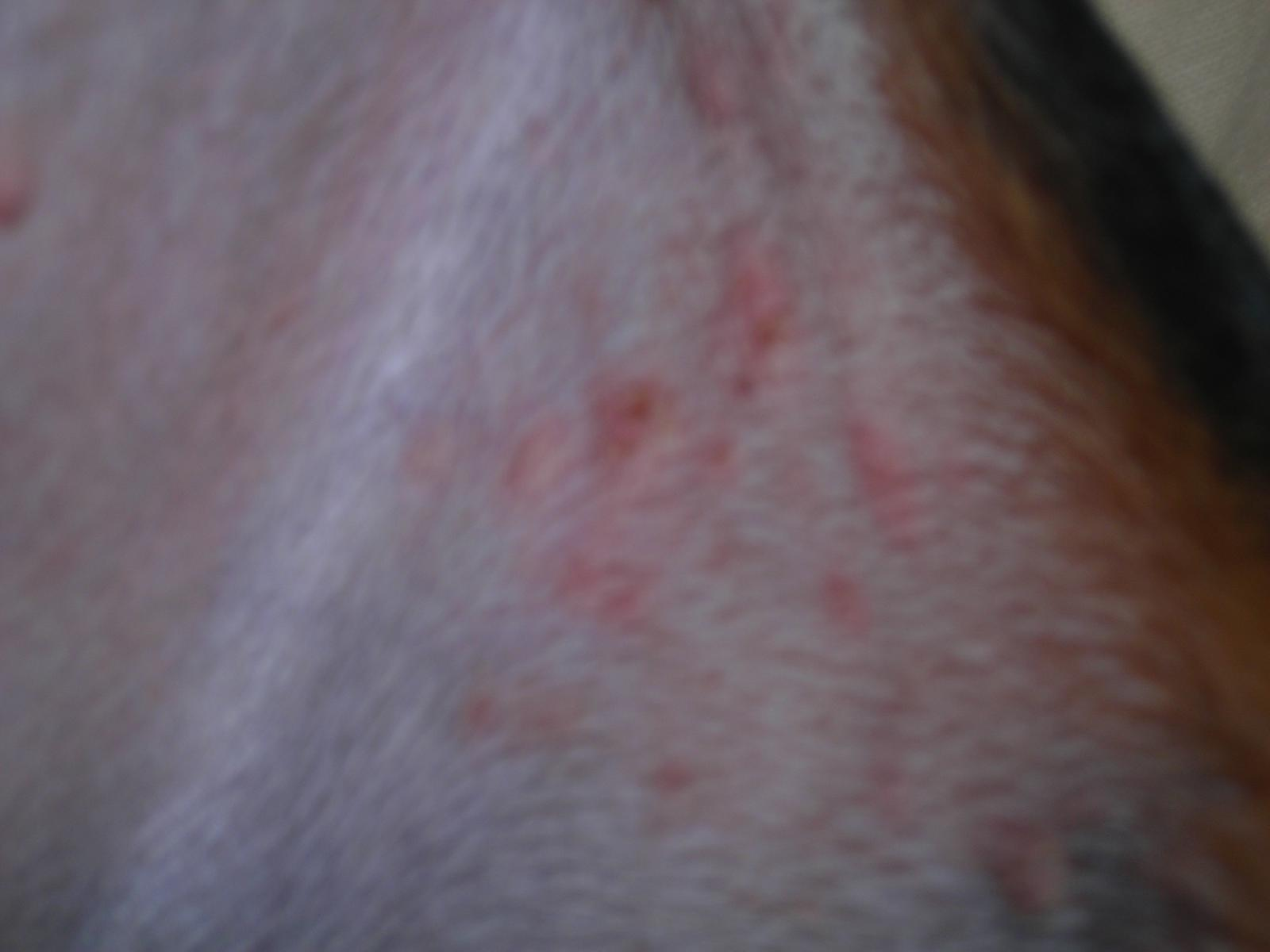 Dog Skin Rashes Skin Rashes In Children On Face In Adults On Hands On ...